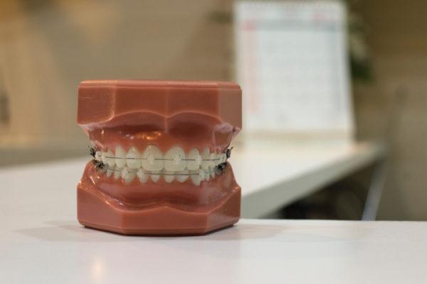 rehabilitacja-stomatologiczna
